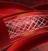 How Fluoropolymers Are Being Used in Cardiac Procedures
